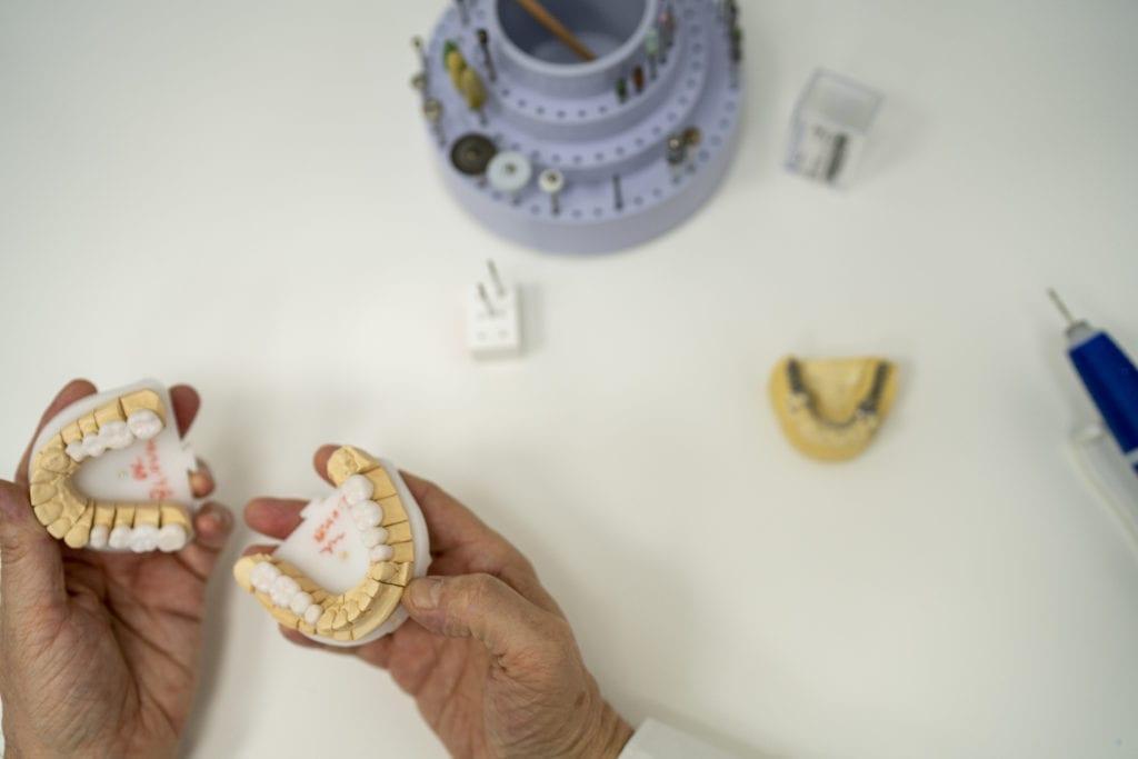 Zahnersatz bei dental gallery